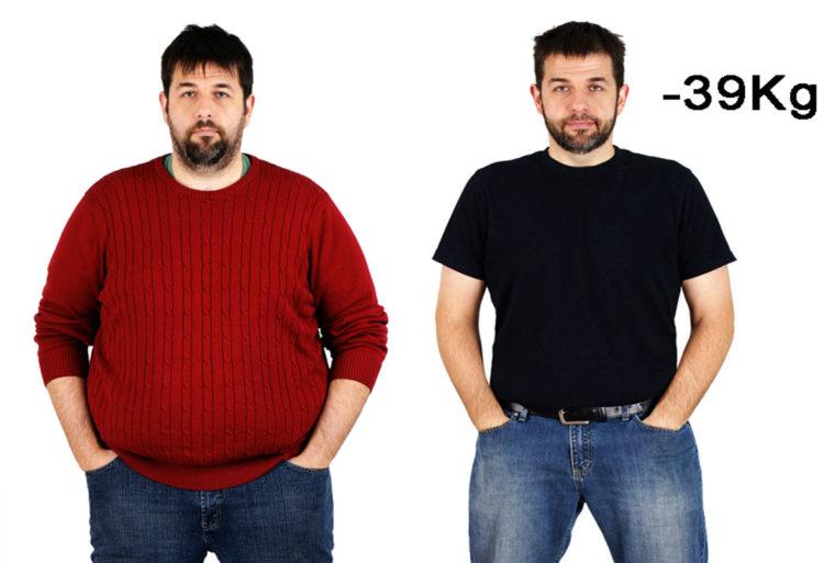 Antes y después de un paciente con balón intragástrico (IMEO)